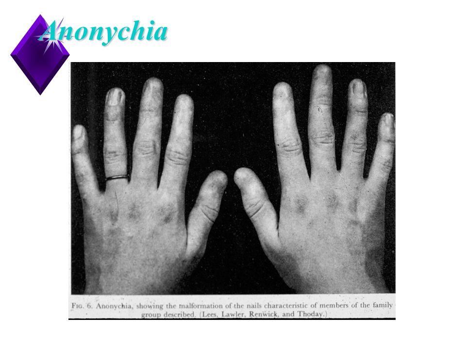 12Anonychia