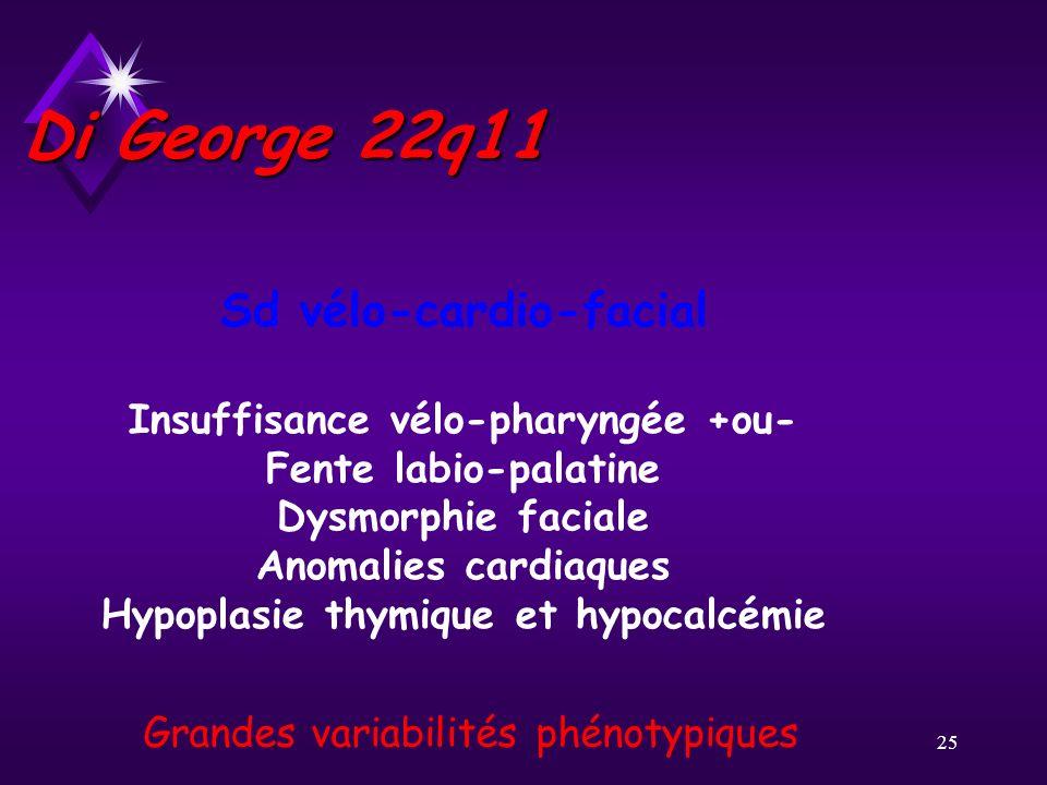 25 Di George 22q11 Sd vélo-cardio-facial Insuffisance vélo-pharyngée +ou- Fente labio-palatine Dysmorphie faciale Anomalies cardiaques Hypoplasie thym