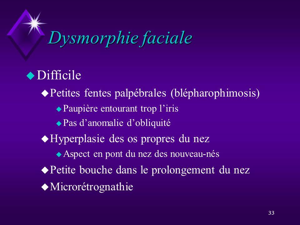 33 Dysmorphie faciale u Difficile u Petites fentes palpébrales (blépharophimosis) u Paupière entourant trop liris u Pas danomalie dobliquité u Hyperpl