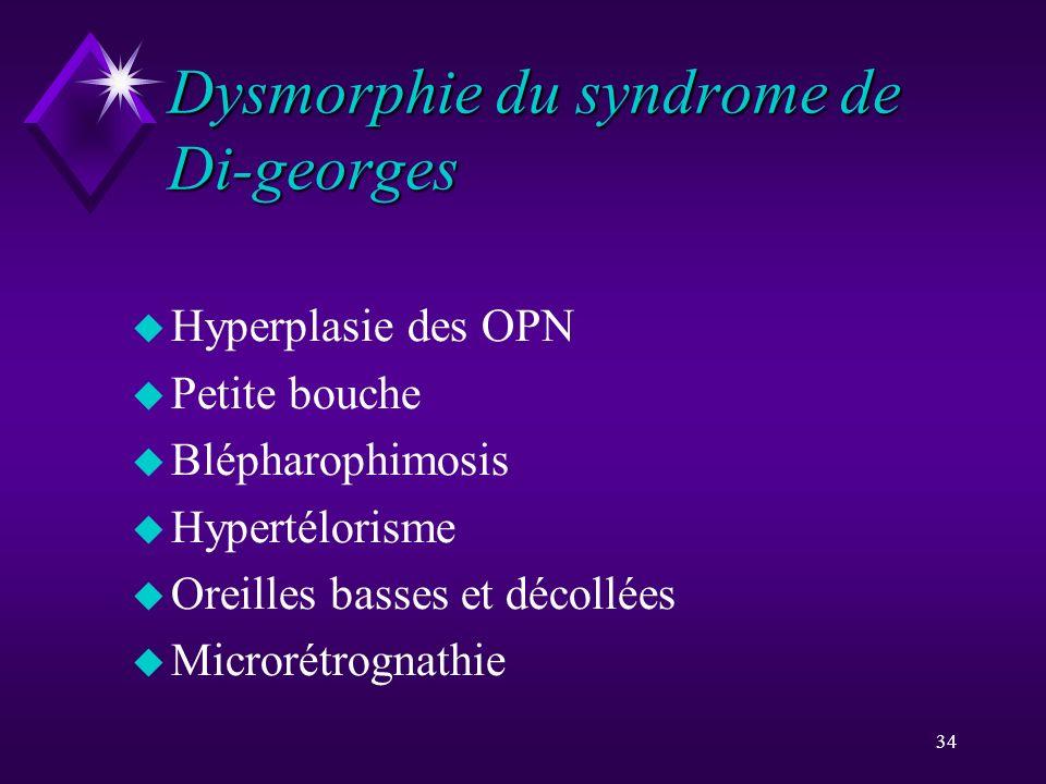 34 Dysmorphie du syndrome de Di-georges u Hyperplasie des OPN u Petite bouche u Blépharophimosis u Hypertélorisme u Oreilles basses et décollées u Mic
