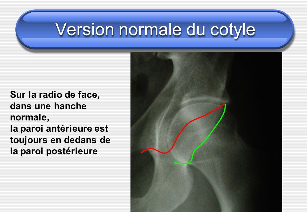 Version normale du cotyle Sur la radio de face, dans une hanche normale, la paroi antérieure est toujours en dedans de la paroi postérieure