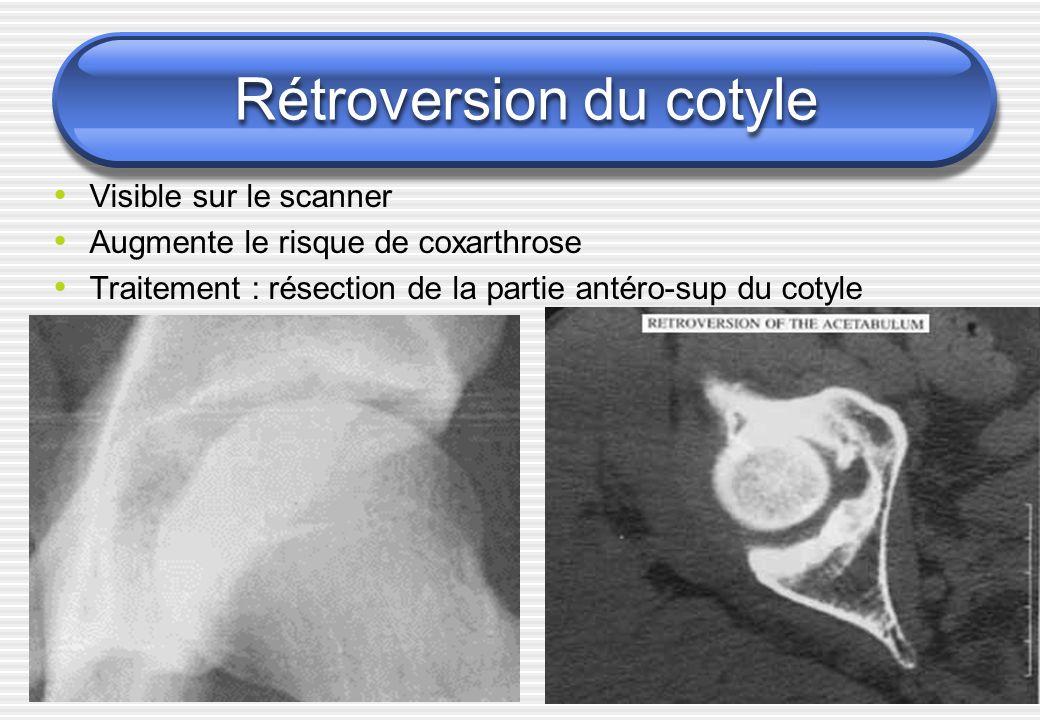 Visible sur le scanner Augmente le risque de coxarthrose Traitement : résection de la partie antéro-sup du cotyle