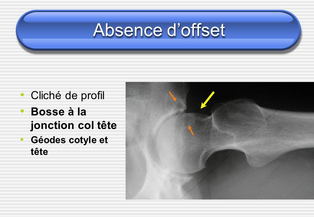 Absence doffset Cliché de profil Bosse à la jonction col tête Géodes cotyle et tête