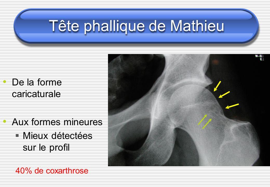 Tête phallique de Mathieu De la forme caricaturale Aux formes mineures Mieux détectées sur le profil 40% de coxarthrose
