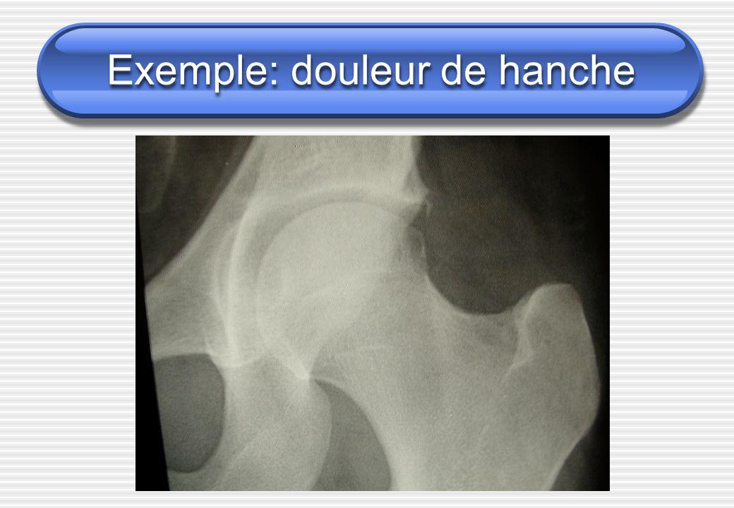 Exemple: douleur de hanche
