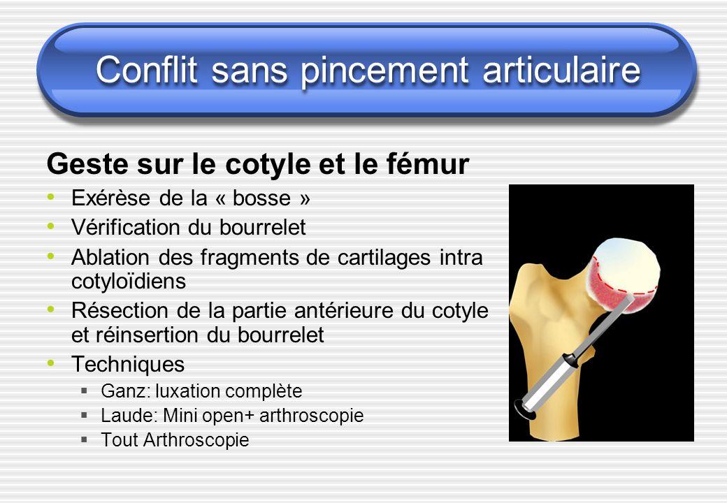Conflit sans pincement articulaire Geste sur le cotyle et le fémur Exérèse de la « bosse » Vérification du bourrelet Ablation des fragments de cartila