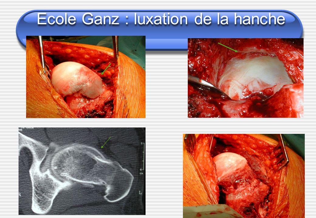 Ecole Ganz : luxation de la hanche