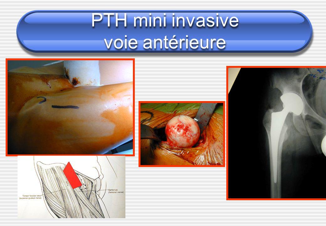 PTH mini invasive voie antérieure