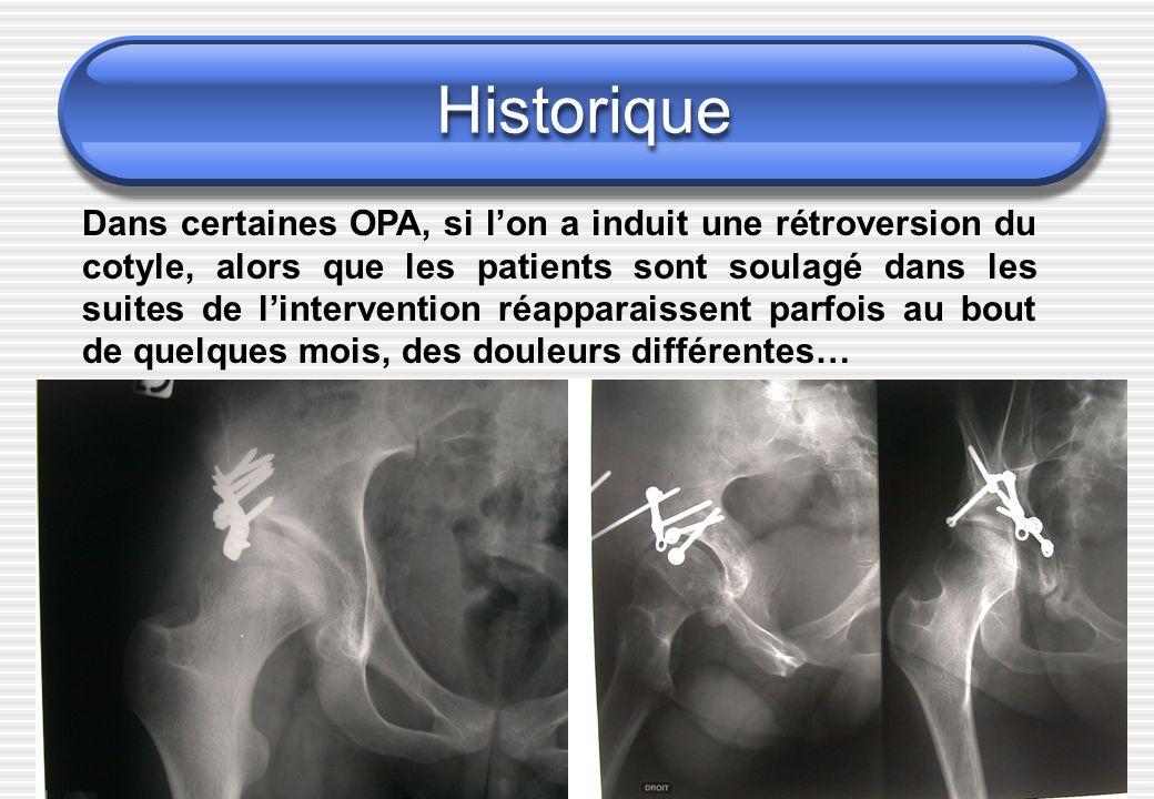 Historique: épiphysiolyse Epiphysiolyse de hanche : coxarthrose avec rapidement des lésions du cotyle plus que de la tête fémorale