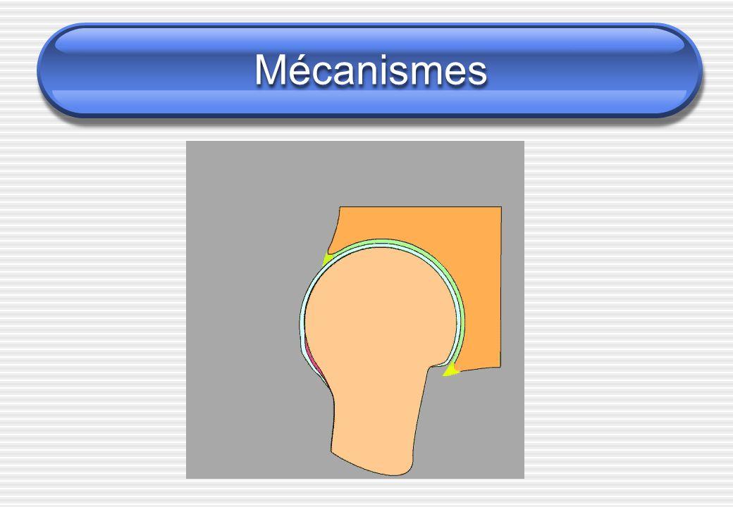 Selon Ganz: 2 types de conflits Conflit par effet came Lésion cotyloïdienne cartilagineuse principale Pas de lésion du bourrelet Conflit par effet tenaille Lésion du bourrelet Pas de lésion cartilagineuse