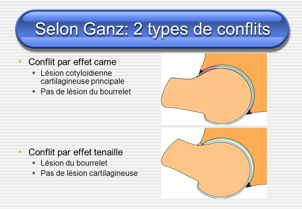 Selon Ganz: 2 types de conflits Conflit par effet came Lésion cotyloïdienne cartilagineuse principale Pas de lésion du bourrelet Conflit par effet ten