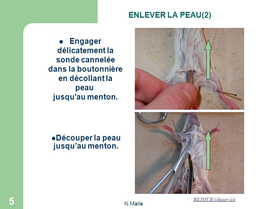 N.Malle 5 Engager délicatement la sonde cannelée dans la boutonnière en décollant la peau jusqu au menton.