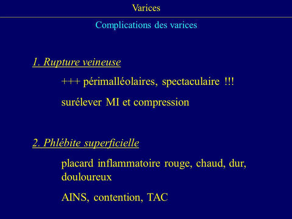 Varices Complications des varices 1. Rupture veineuse +++ périmalléolaires, spectaculaire !!! surélever MI et compression 2. Phlébite superficielle pl