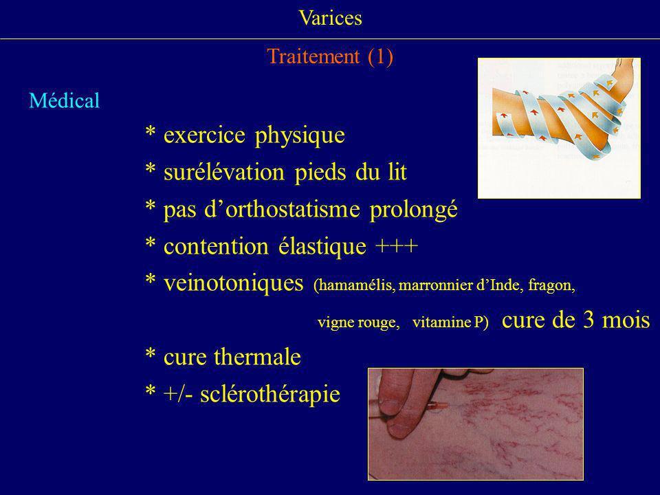 Varices Traitement (1) Médical * exercice physique * surélévation pieds du lit * pas dorthostatisme prolongé * contention élastique +++ * veinotonique