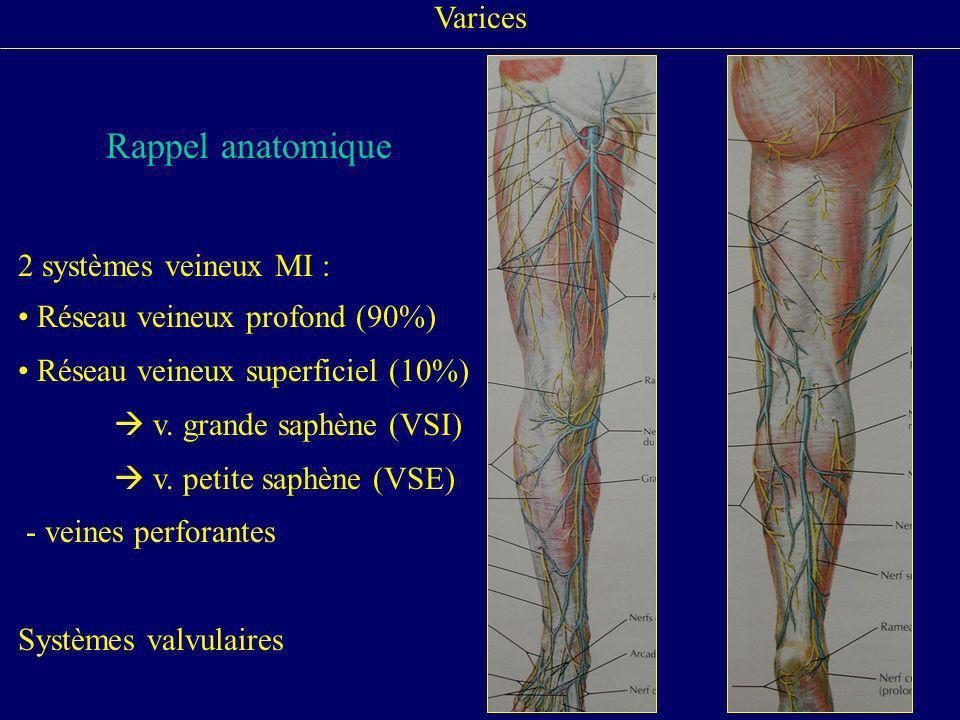 Varices Rappel anatomique 2 systèmes veineux MI : Réseau veineux profond (90%) Réseau veineux superficiel (10%) v. grande saphène (VSI) v. petite saph