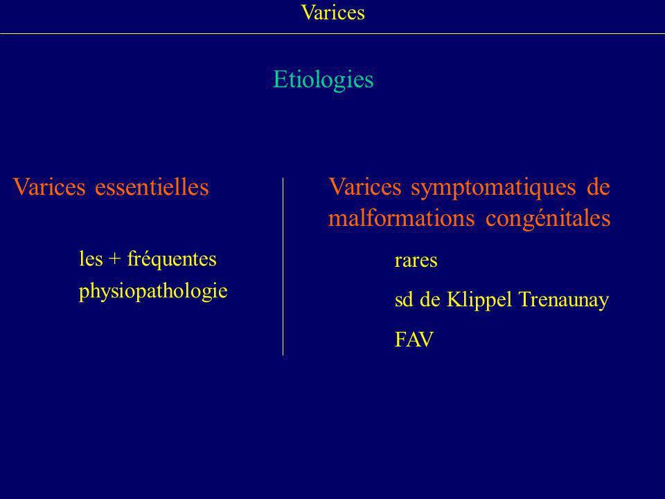 Varices Etiologies Varices essentielles les + fréquentes physiopathologie Varices symptomatiques de malformations congénitales rares sd de Klippel Tre