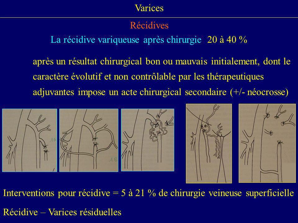 Varices Récidives La récidive variqueuse après chirurgie 20 à 40 % après un résultat chirurgical bon ou mauvais initialement, dont le caractère évolut