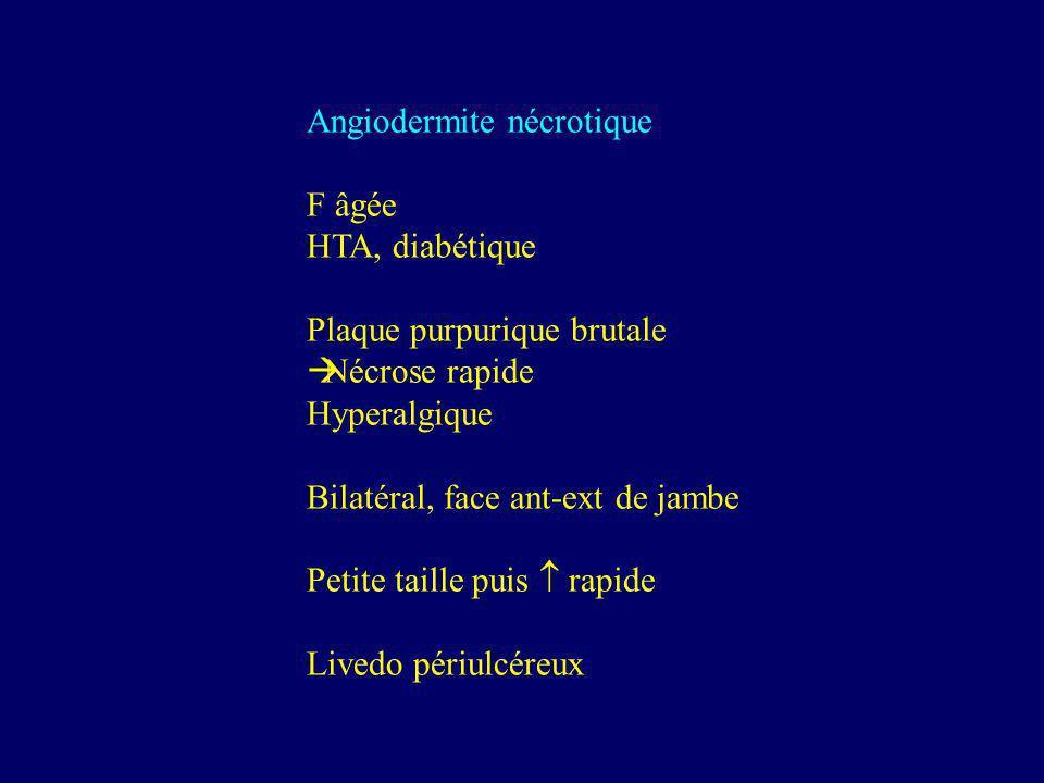 Angiodermite nécrotique F âgée HTA, diabétique Plaque purpurique brutale Nécrose rapide Hyperalgique Bilatéral, face ant-ext de jambe Petite taille pu