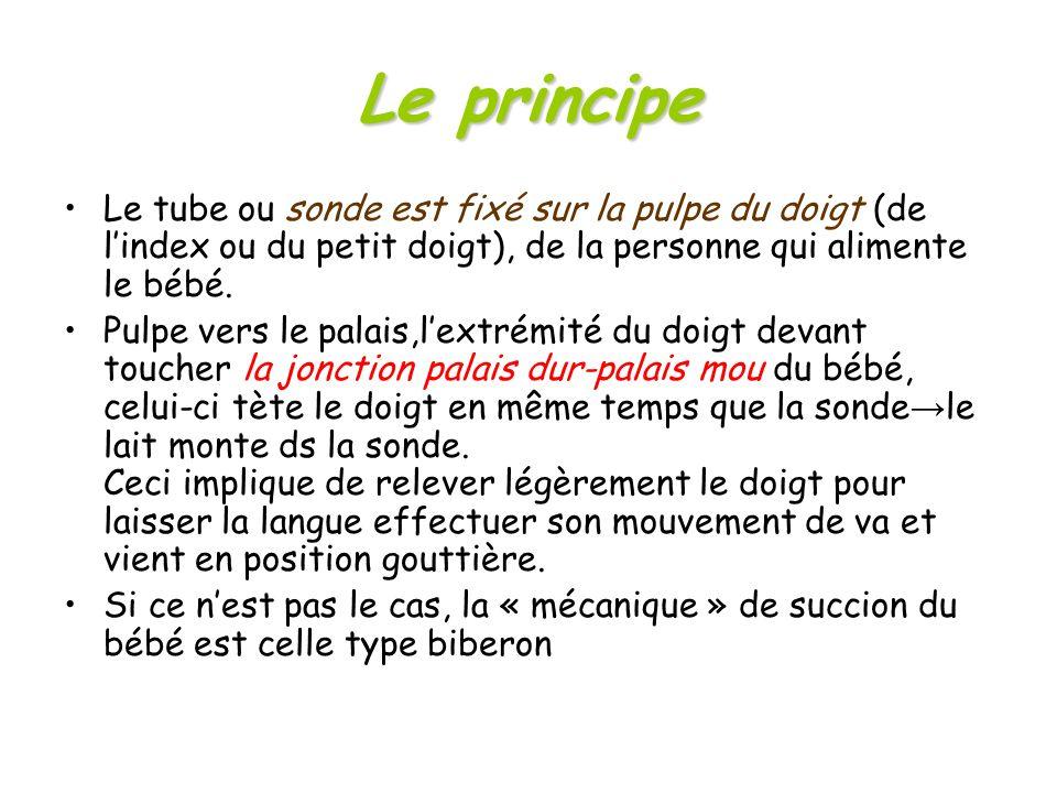 Le principe Le tube ou sonde est fixé sur la pulpe du doigt (de lindex ou du petit doigt), de la personne qui alimente le bébé. Pulpe vers le palais,l