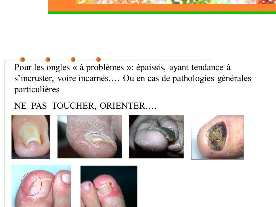 Pour les ongles « à problèmes »: épaissis, ayant tendance à sincruster, voire incarnés…. Ou en cas de pathologies générales particulières NE PAS TOUCH