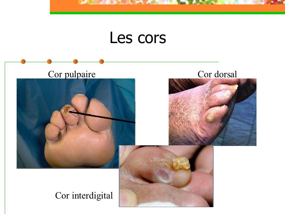 Les cors Cor pulpaireCor dorsal Cor interdigital