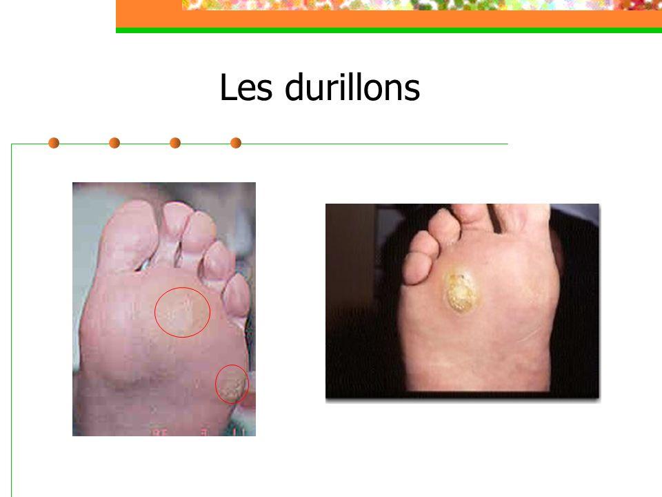 Déformations des ongles Ongles en « pince » Ongle en plicature