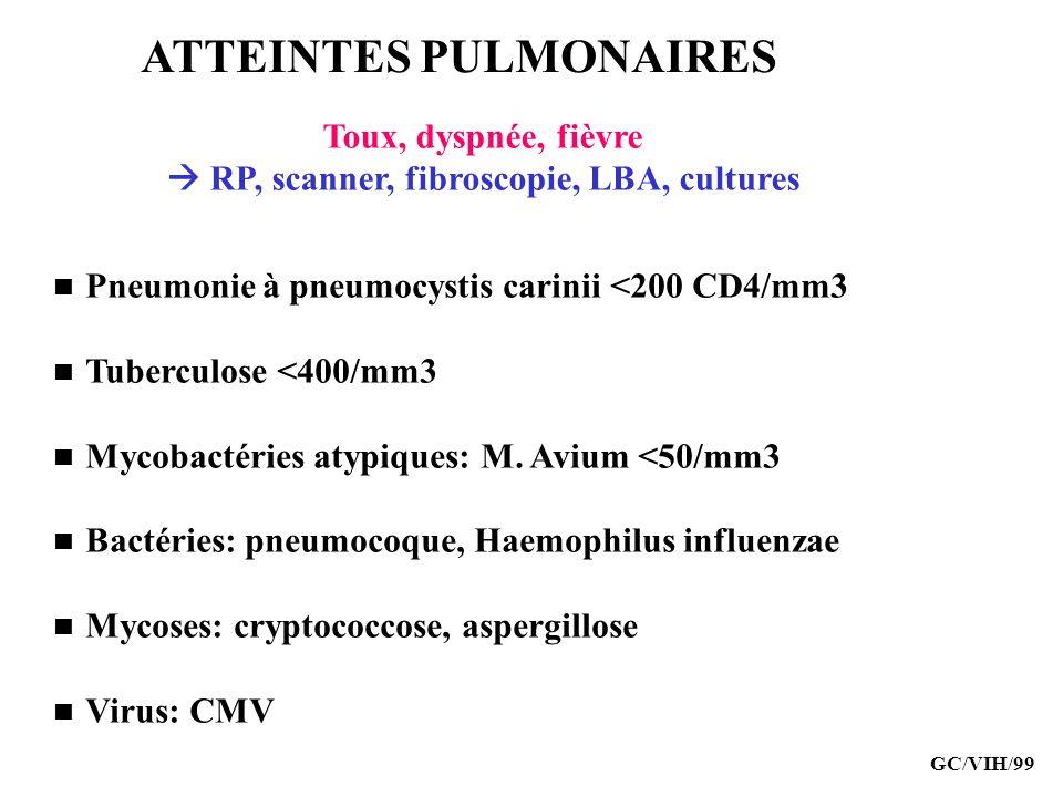 ATTEINTES PULMONAIRES Pneumonie à pneumocystis carinii <200 CD4/mm3 Tuberculose <400/mm3 Mycobactéries atypiques: M. Avium <50/mm3 Bactéries: pneumoco
