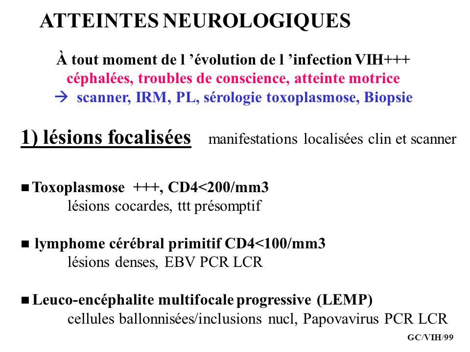 ATTEINTES NEUROLOGIQUES À tout moment de l évolution de l infection VIH+++ céphalées, troubles de conscience, atteinte motrice scanner, IRM, PL, sérol