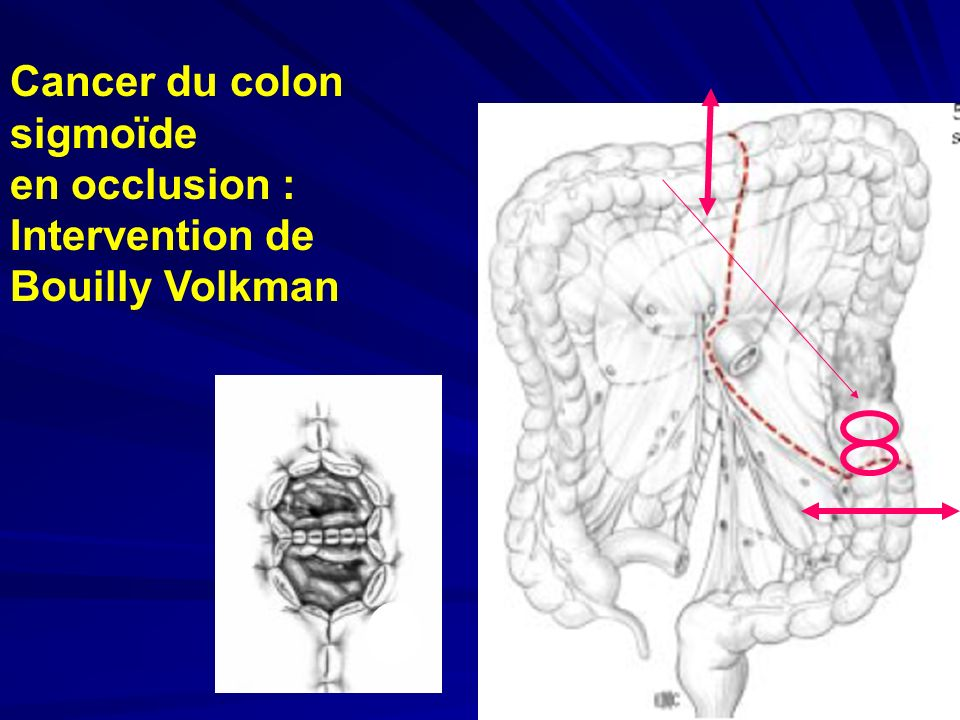 Cancer du colon sigmoïde en occlusion : Intervention de Bouilly Volkman