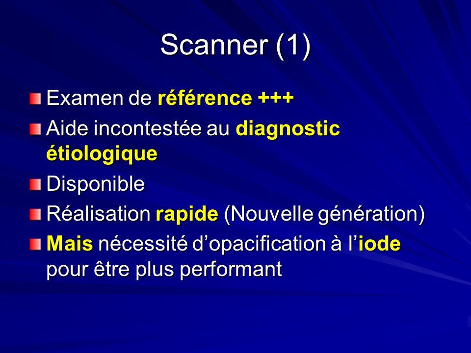 Scanner (1) Examen de référence +++ Aide incontestée au diagnostic étiologique Disponible Réalisation rapide (Nouvelle génération) Mais nécessité dopa