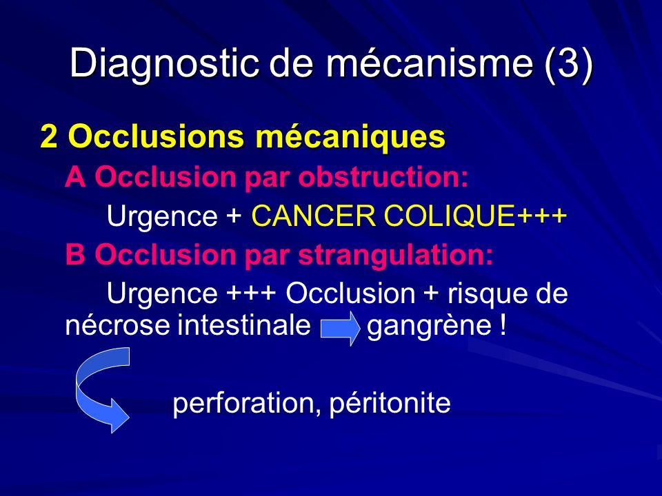 Diagnostic de mécanisme (3) 2 Occlusions mécaniques A Occlusion par obstruction: Urgence + CANCER COLIQUE+++ B Occlusion par strangulation: Urgence ++