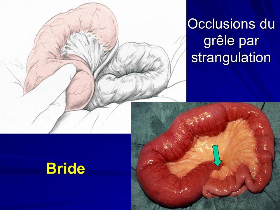 Occlusions du grêle par strangulation Bride