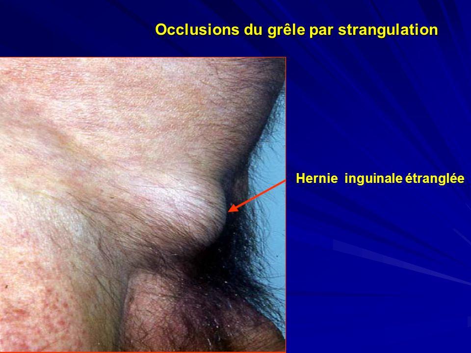 Hernie inguinale étranglée Occlusions du grêle par strangulation