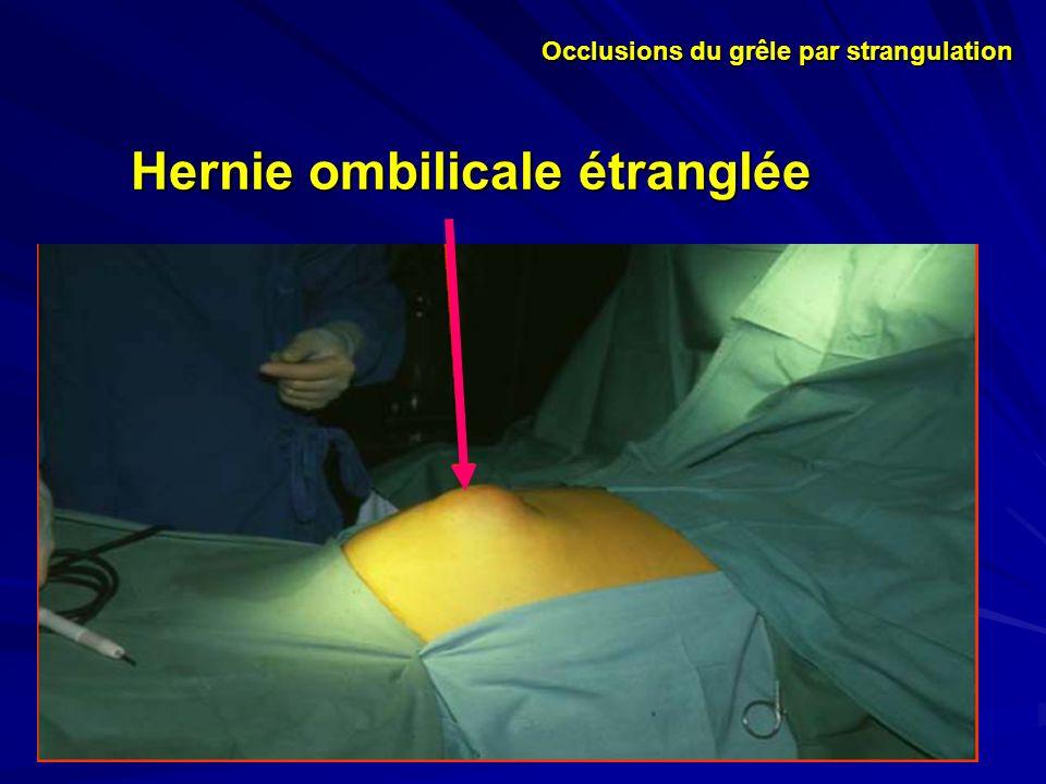 Hernie ombilicale étranglée Occlusions du grêle par strangulation