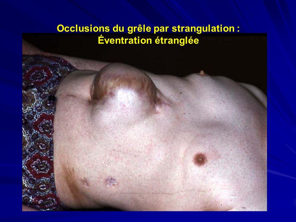 Occlusions du grêle par strangulation : Éventration étranglée