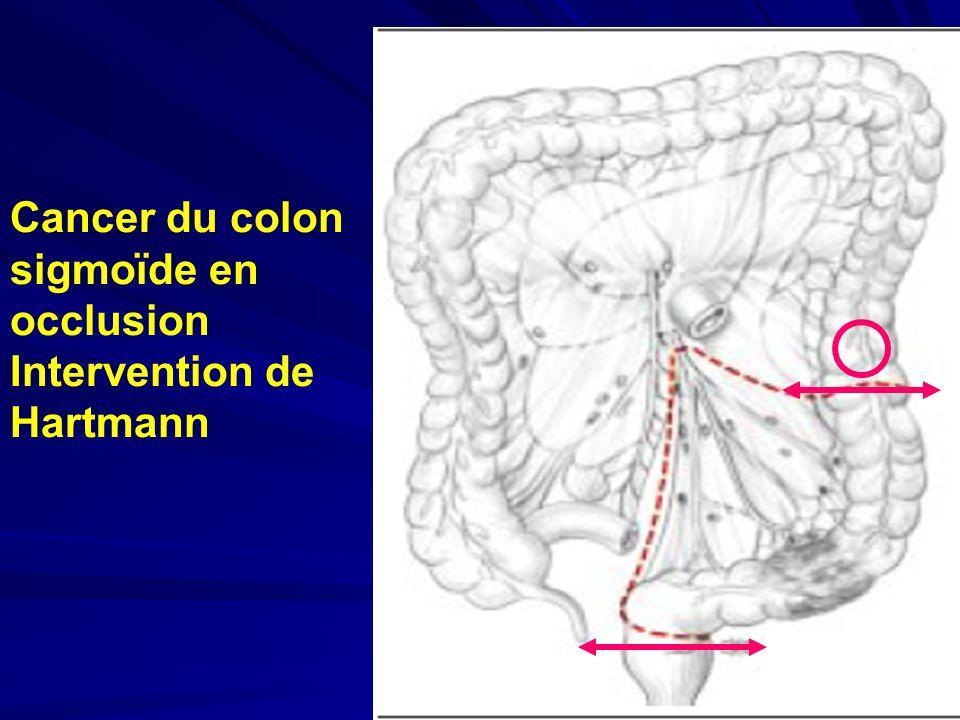 Cancer du colon sigmoïde en occlusion Intervention de Hartmann