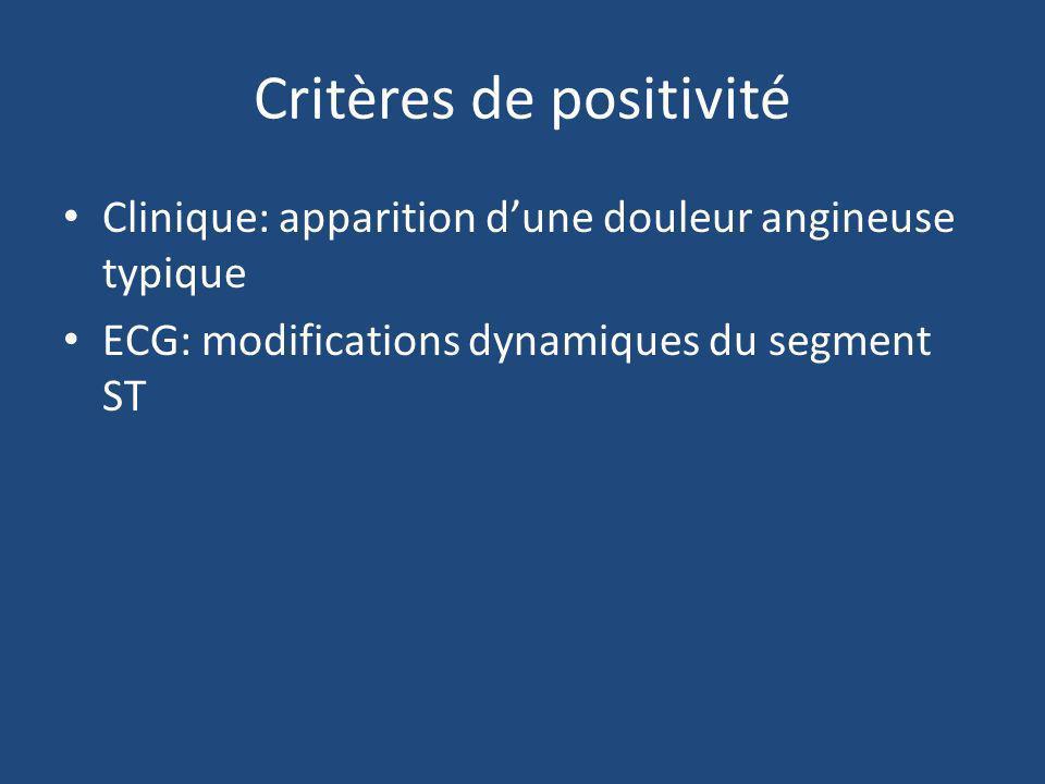 Critères de positivité Clinique: apparition dune douleur angineuse typique ECG: modifications dynamiques du segment ST