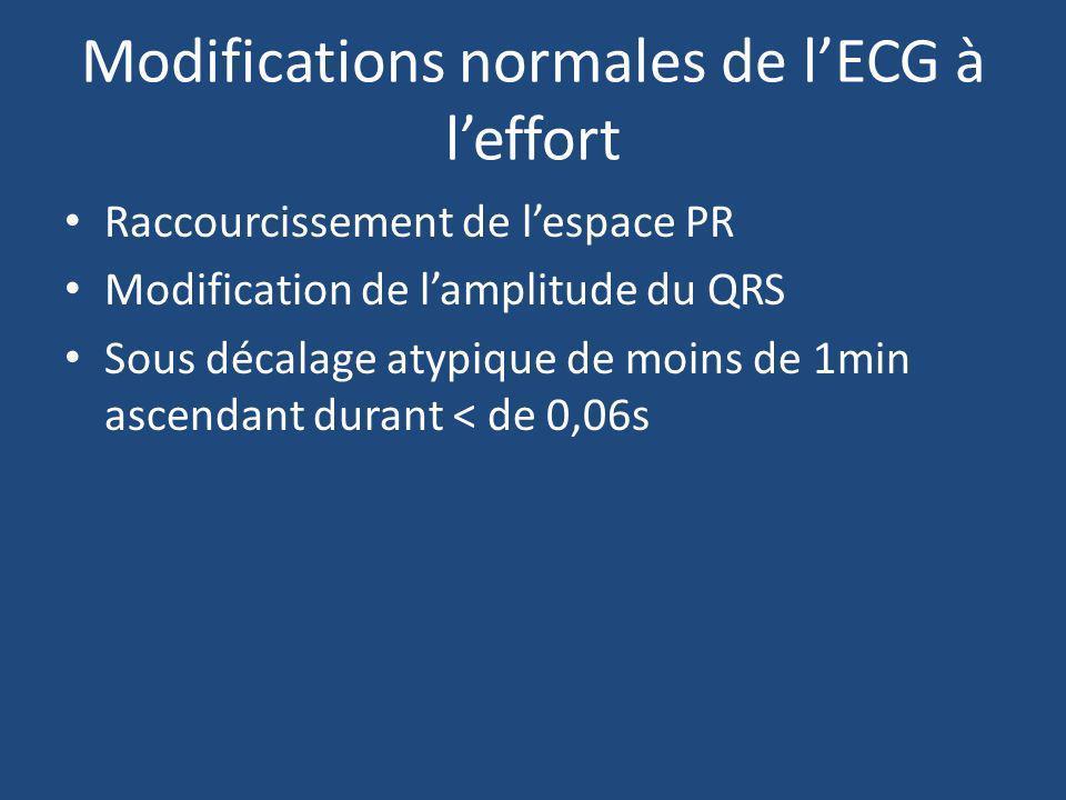 Modifications normales de lECG à leffort Raccourcissement de lespace PR Modification de lamplitude du QRS Sous décalage atypique de moins de 1min asce
