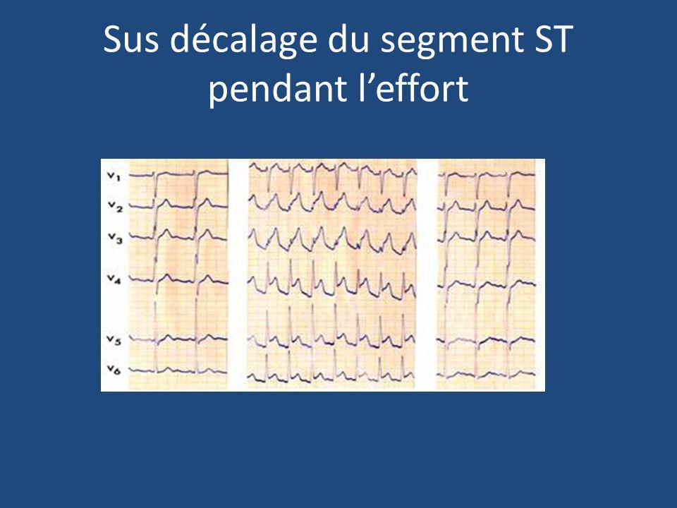 Sus décalage du segment ST pendant leffort