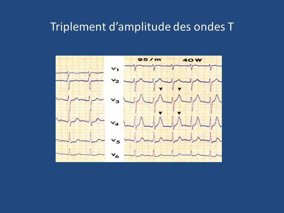 Triplement damplitude des ondes T