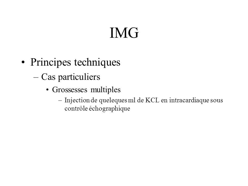 IMG Principes techniques –Cas particuliers Grossesses multiples –Injection de queleques ml de KCL en intracardiaque sous contrôle échographique