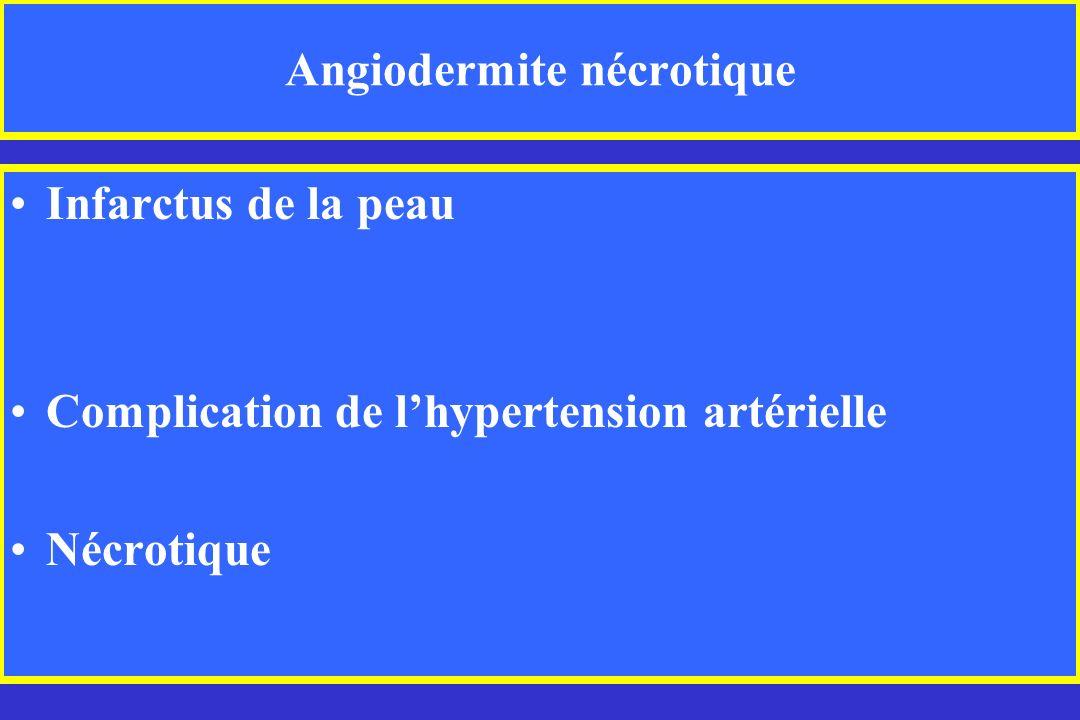 Angiodermite nécrotique Infarctus de la peau Complication de lhypertension artérielle Nécrotique