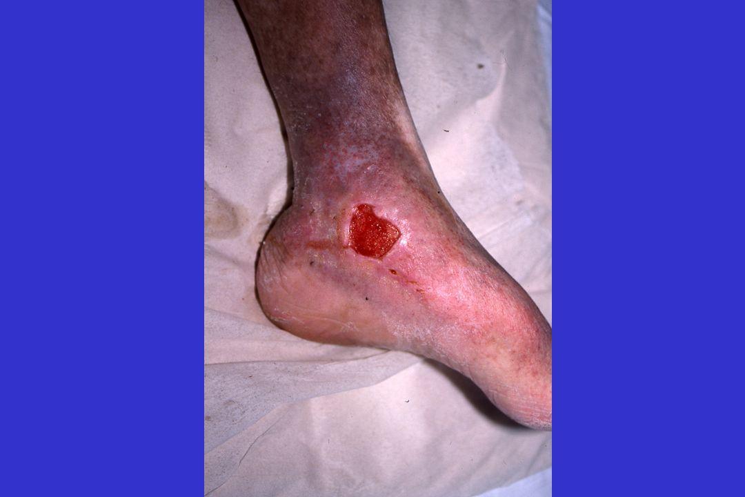 ULCERE ISCHEMIQUE (artériel) Artériopathie des membres inférieurs Pas de pouls au pied Douloureux Difficile à guérir Facteurs de risque vasculaires –Tabac –Diabète –Cholestérol –Hypertension artérielle