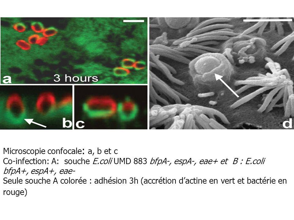 Microscopie confocale : a, b et c Co-infection: A: souche E.coli UMD 883 bfpA-, espA-, eae+ et B : E.coli bfpA+, espA+, eae- Seule souche A colorée :