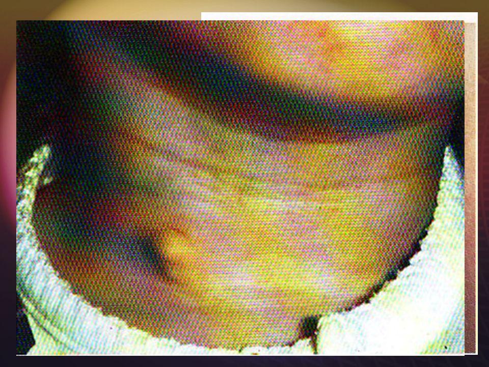 SYNDROME BOR Surdité de perception associée à une malformation de loreille externe. Fistules branchiales multiples. Malformations rénales Surdité de p