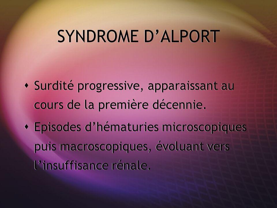 SYNDROME DALPORT Surdité progressive, apparaissant au cours de la première décennie. Episodes dhématuries microscopiques puis macroscopiques, évoluant