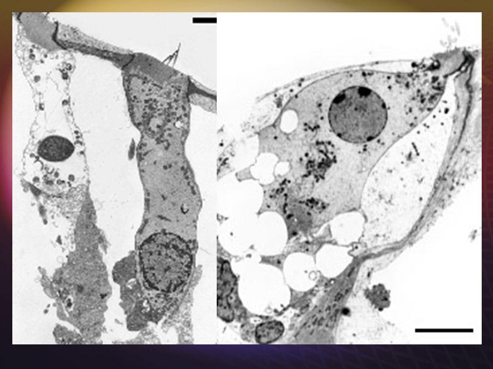 SURDITE TRAUMATIQUE Un mécanisme commun bien connu: lexcitotoxicité, qui atteint les synapses des CCI et des CCE, et les CCE elles-mêmes. Réparation s