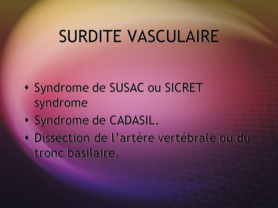 SURDITE VASCULAIRE Syndrome de SUSAC ou SICRET syndrome Syndrome de CADASIL. Dissection de lartère vertébrale ou du tronc basilaire. Syndrome de SUSAC