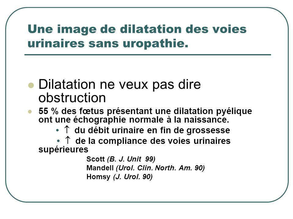 Une image de dilatation des voies urinaires sans uropathie. Dilatation ne veux pas dire obstruction 55 % des fœtus présentant une dilatation pyélique
