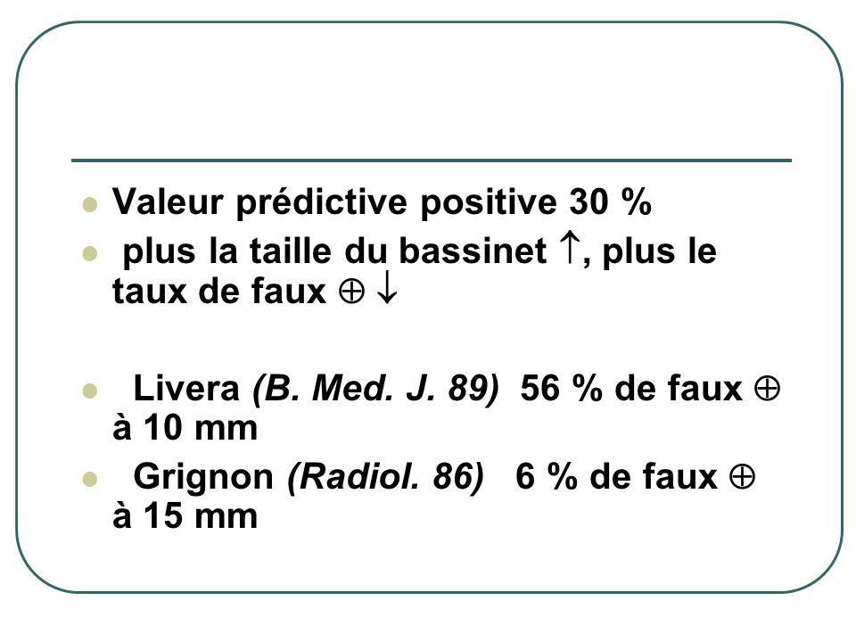 Valeur prédictive positive 30 % plus la taille du bassinet, plus le taux de faux Livera (B. Med. J. 89) 56 % de faux à 10 mm Grignon (Radiol. 86) 6 %
